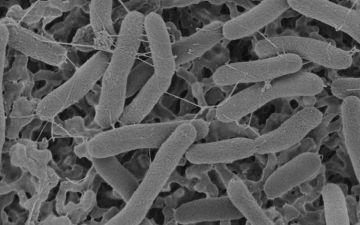 Будова бактерії ЛОГО.jpg